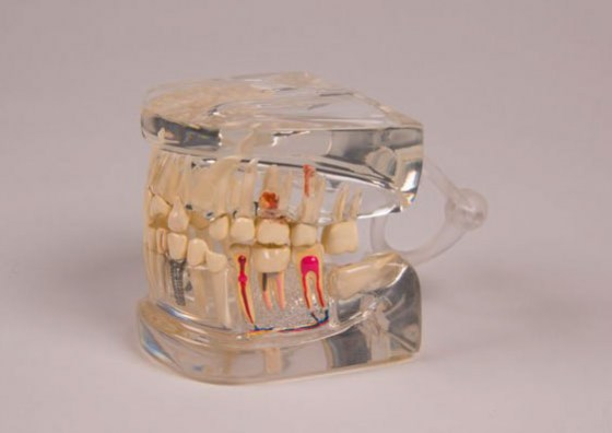 modele-dentition-transparente